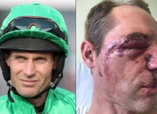 Cook suffered a fractured eye socket requiring 60 stitches to facial injuries following fall at Market Rasen in October.